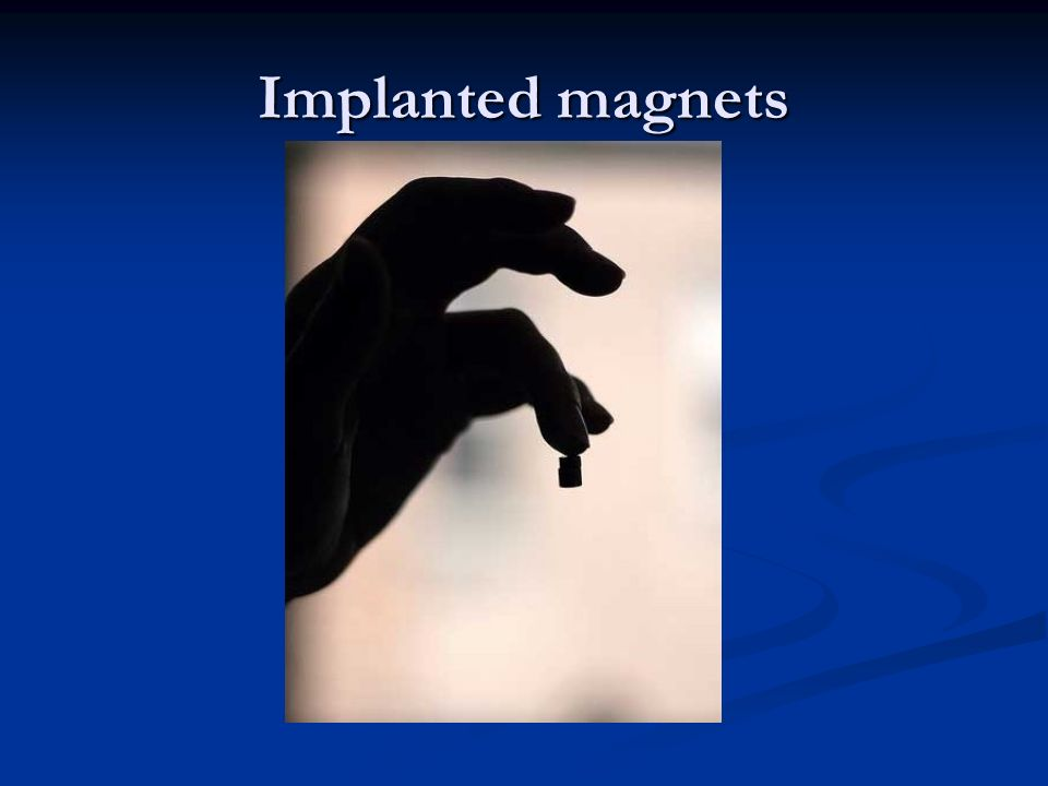 Implanted magnets