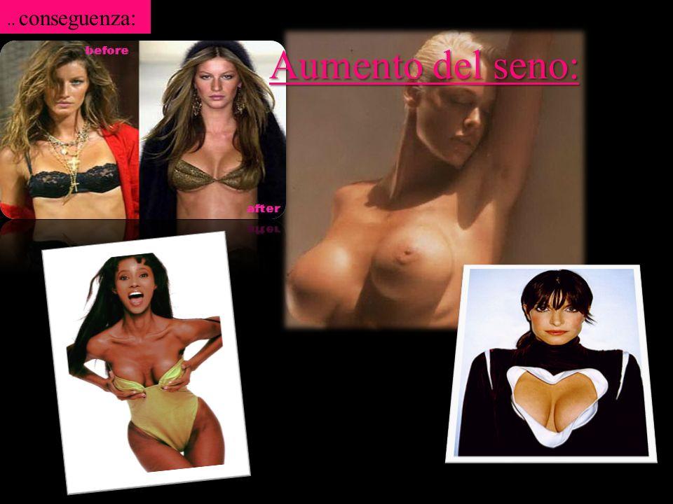 Aumento del seno:.. conseguenza: