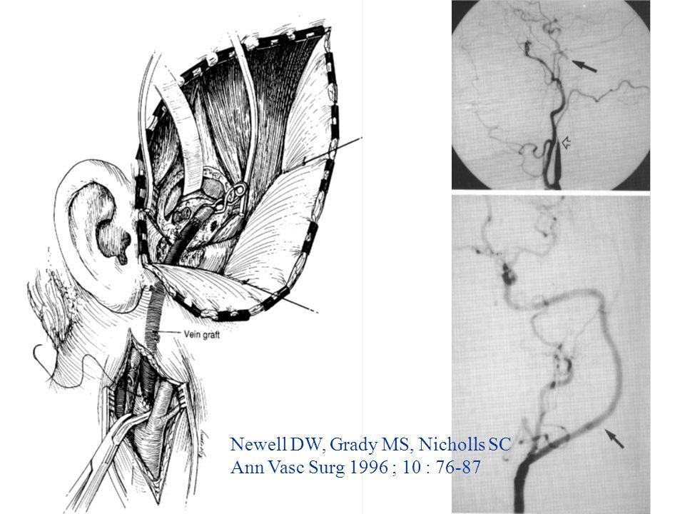 19 Newell DW, Grady MS, Nicholls SC Ann Vasc Surg 1996 ; 10 : 76-87