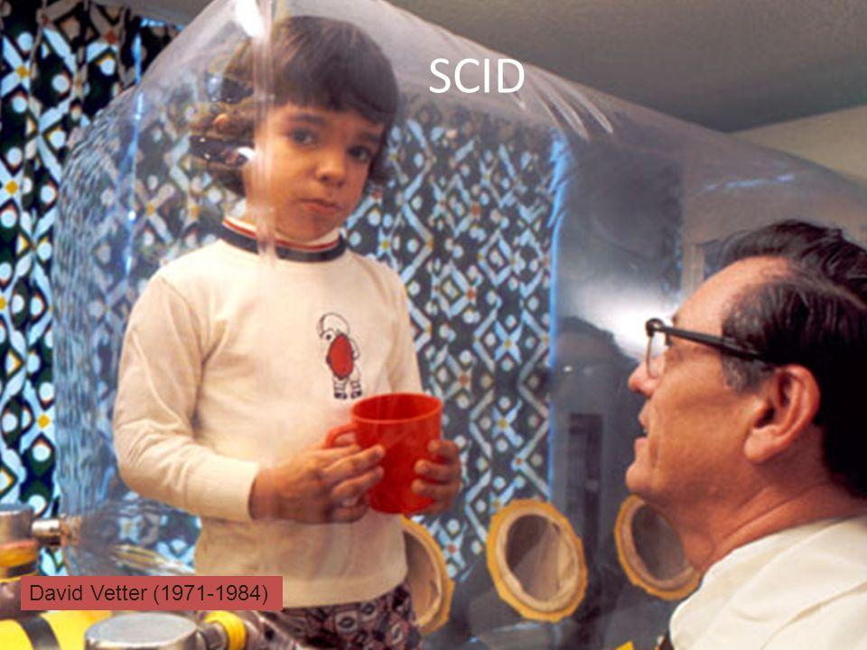 SCID David Vetter (1971-1984)