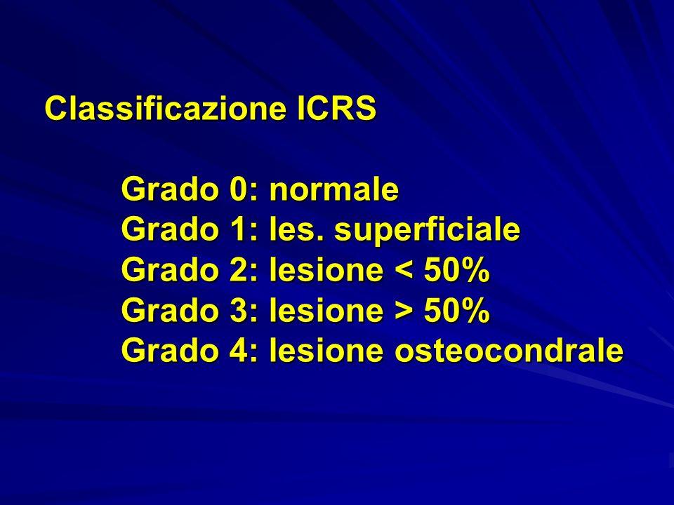 Classificazione ICRS Grado 0: normale Grado 1: les. superficiale Grado 2: lesione 50% Grado 4: lesione osteocondrale Classificazione ICRS Grado 0: nor