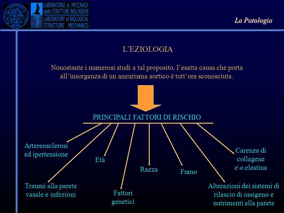 LEZIOLOGIA Nonostante i numerosi studi a tal proposito, lesatta causa che porta allinsorgenza di un aneurisma aortico è tuttora sconosciuta. PRINCIPAL
