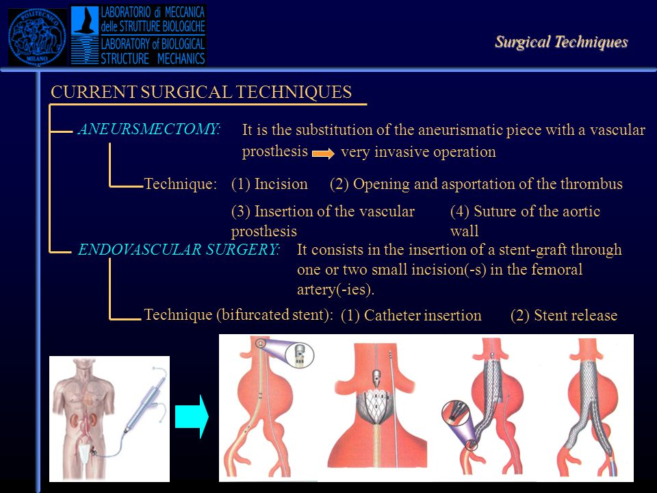 The Computational Study AIM OF THE COMPUTATIONAL ANALYSIS Estimating the recovery of the memorized shape Studying the interaction between the aortic wall and the Nitinol structure Limits of the analysis Geometrical approximation The pre-load due to the blood pressure was not considered Software Rhinoceros: to create the models Gambit: to mesh the models ABAQUS: analysis code.