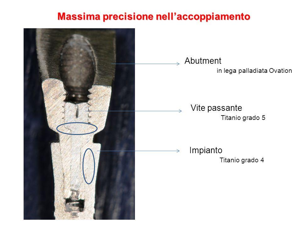 Massima precisione nellaccoppiamento Abutment in lega palladiata Ovation Vite passante Titanio grado 5 Impianto Titanio grado 4