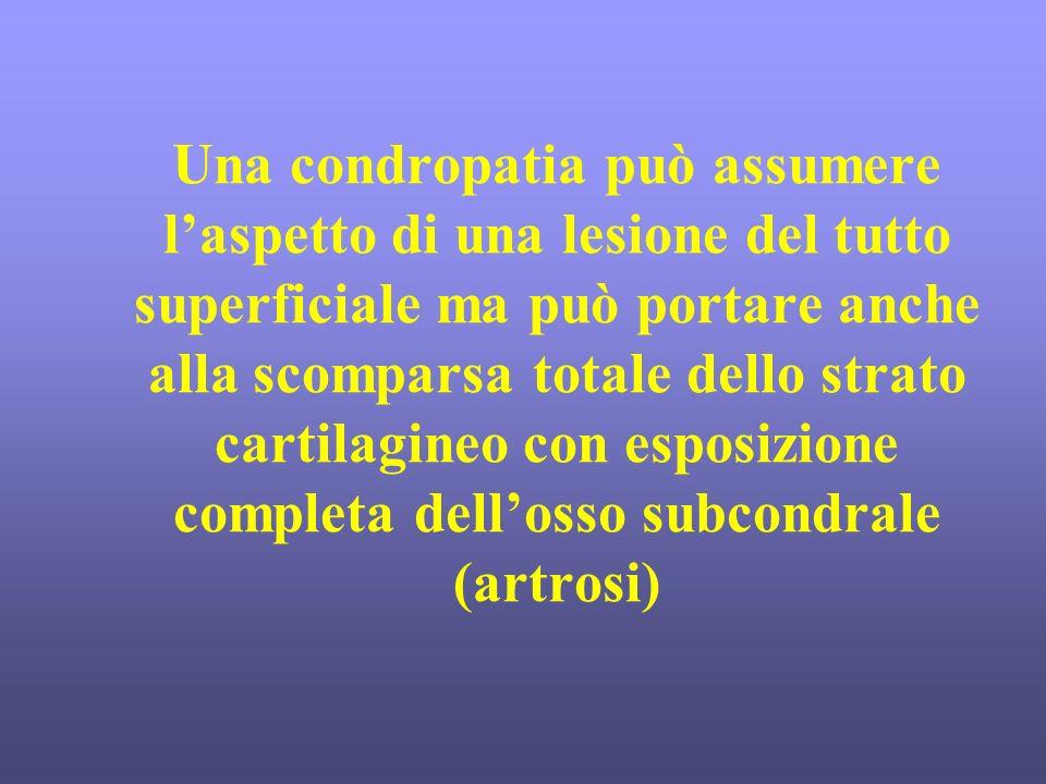 Una condropatia può assumere laspetto di una lesione del tutto superficiale ma può portare anche alla scomparsa totale dello strato cartilagineo con e