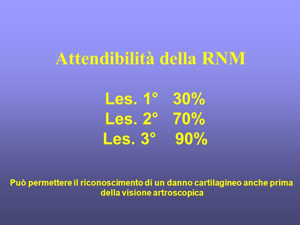 Attendibilità della RNM Les. 1° 30% Les. 2° 70% Les. 3° 90% Può permettere il riconoscimento di un danno cartilagineo anche prima della visione artros