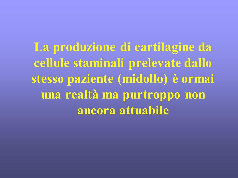 La produzione di cartilagine da cellule staminali prelevate dallo stesso paziente (midollo) è ormai una realtà ma purtroppo non ancora attuabile