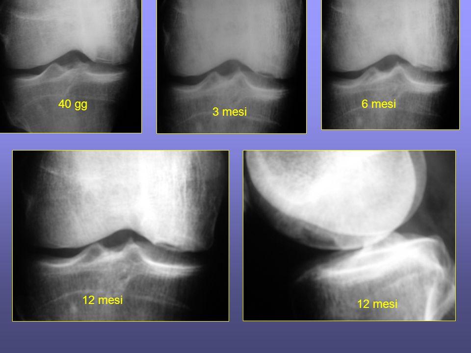 40 gg 3 mesi 6 mesi 12 mesi