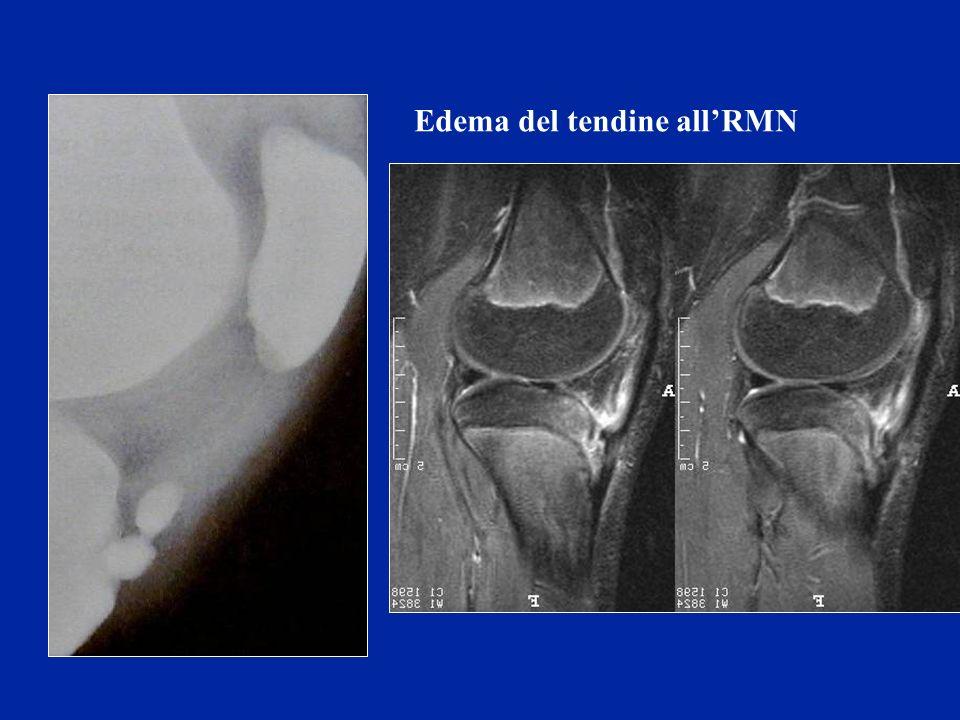 Edema del tendine allRMN