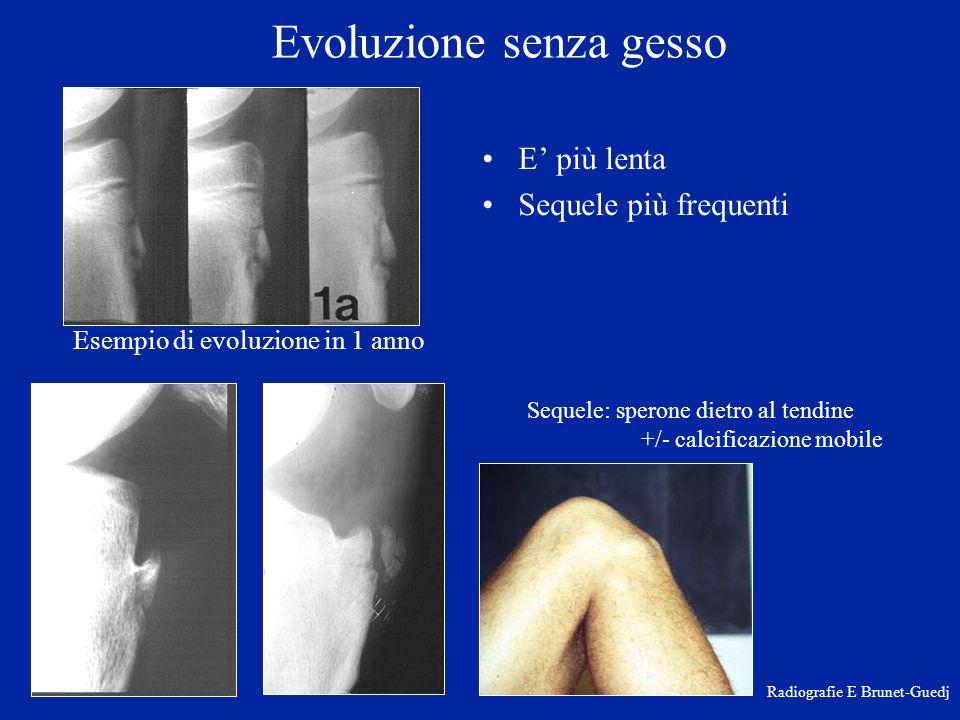 Evoluzione senza gesso E più lenta Sequele più frequenti Radiografie E Brunet-Guedj Sequele: sperone dietro al tendine +/- calcificazione mobile Esemp