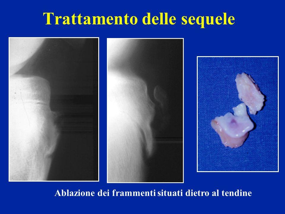Trattamento delle sequele Ablazione dei frammenti situati dietro al tendine