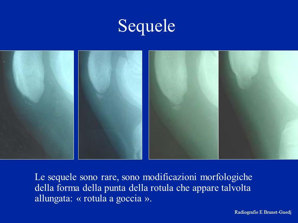 Sequele Le sequele sono rare, sono modificazioni morfologiche della forma della punta della rotula che appare talvolta allungata: « rotula a goccia ».