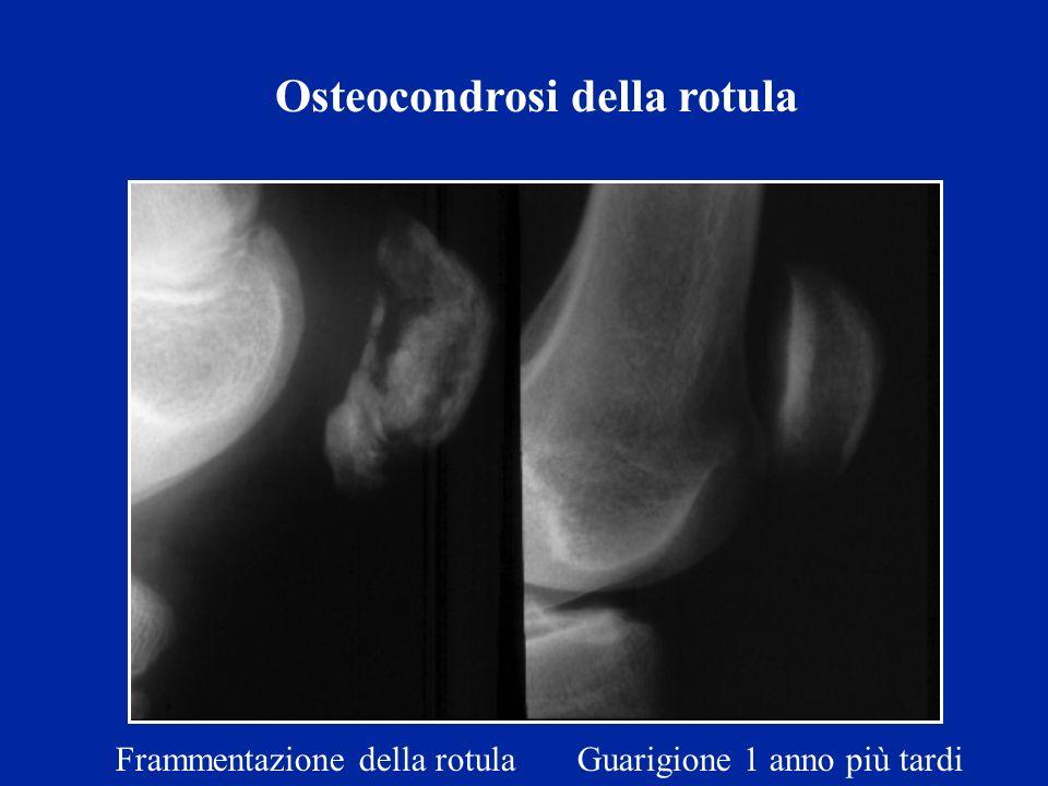 Osteocondrosi della rotula Frammentazione della rotula Guarigione 1 anno più tardi