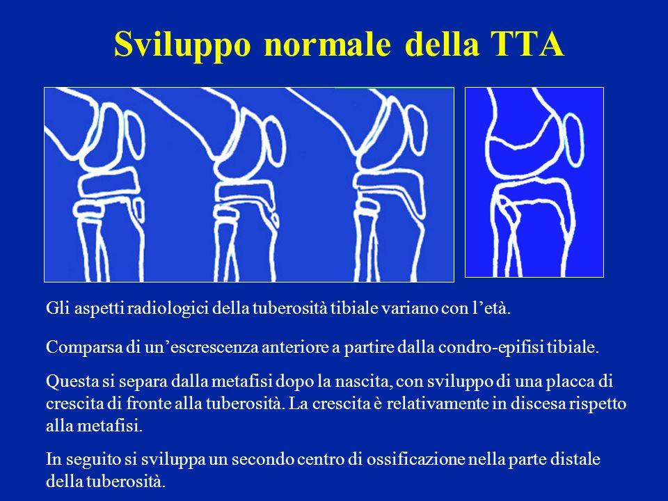 Sviluppo normale della TTA Gli aspetti radiologici della tuberosità tibiale variano con letà. Comparsa di unescrescenza anteriore a partire dalla cond