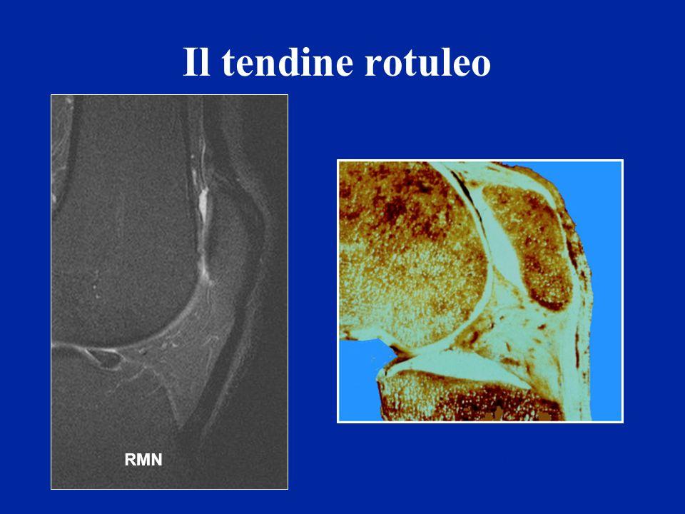 Il tendine rotuleo RMNAnatomie