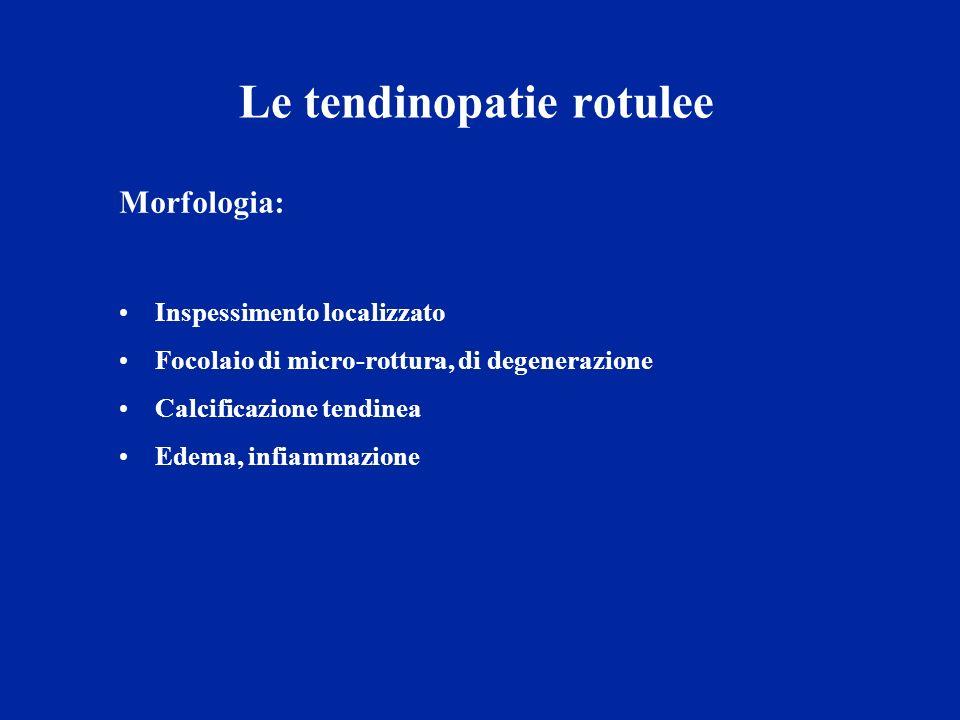 Le tendinopatie rotulee Morfologia: Inspessimento localizzato Focolaio di micro-rottura, di degenerazione Calcificazione tendinea Edema, infiammazione