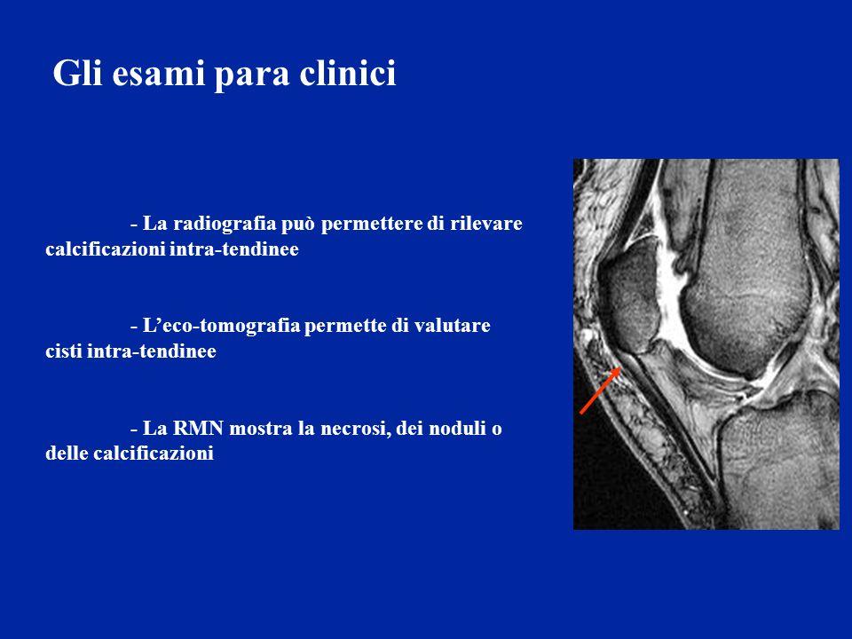 Gli esami para clinici - La radiografia può permettere di rilevare calcificazioni intra-tendinee - Leco-tomografia permette di valutare cisti intra-te