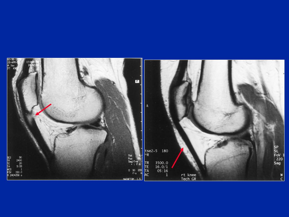 Le tendinopatie rotulee Yu JS, Am J Roentgenol 1995 Documenti Y. Carillon