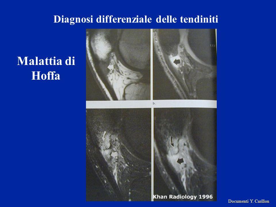 Malattia di Hoffa Diagnosi differenziale delle tendiniti Documenti Y. Carillon