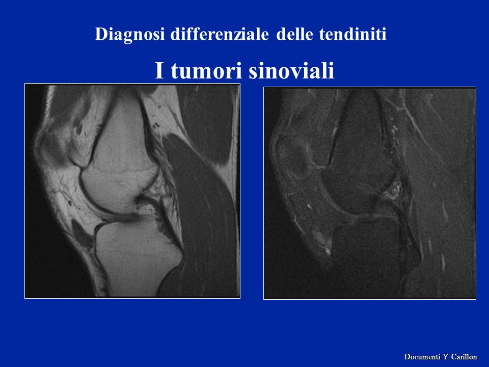 I tumori sinoviali Diagnosi differenziale delle tendiniti Documenti Y. Carillon