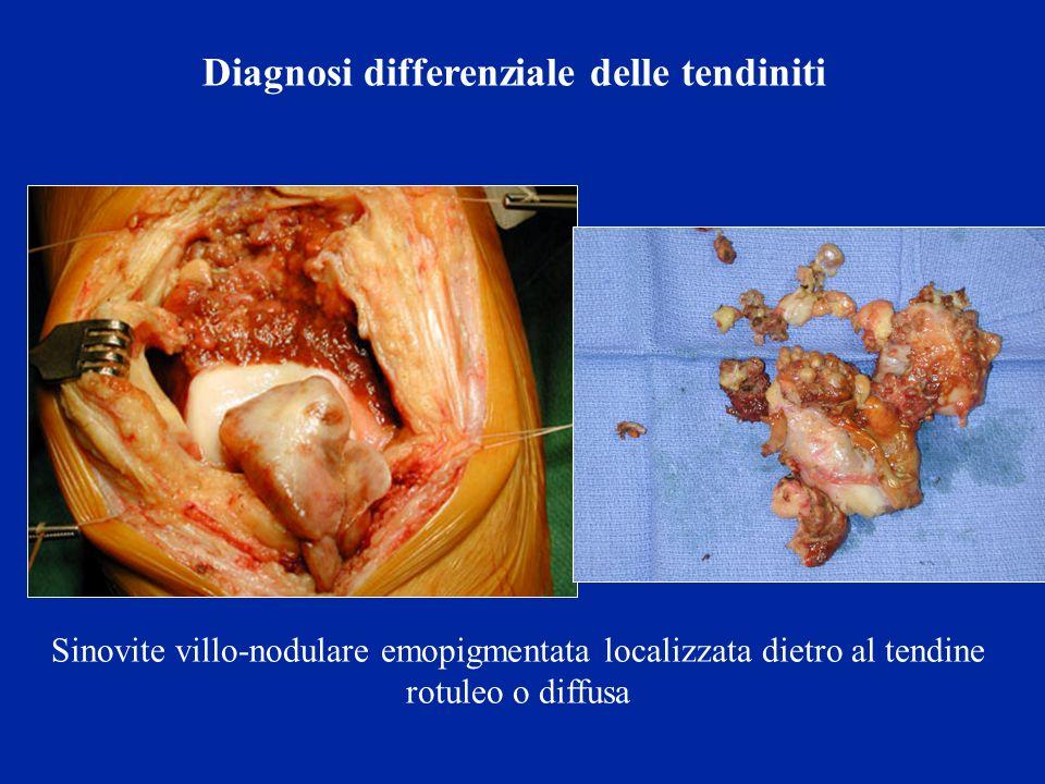 Sinovite villo-nodulare emopigmentata localizzata dietro al tendine rotuleo o diffusa Diagnosi differenziale delle tendiniti