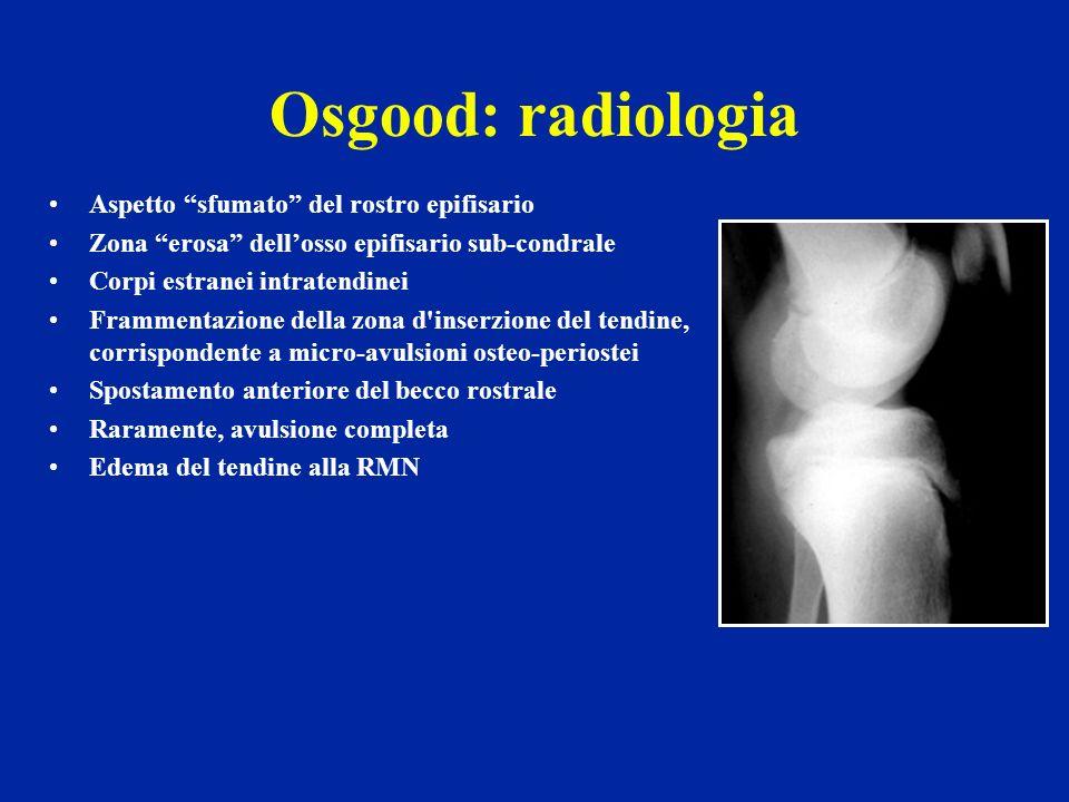 Osgood: radiologia Aspetto sfumato del rostro epifisario Zona erosa dellosso epifisario sub-condrale Corpi estranei intratendinei Frammentazione della
