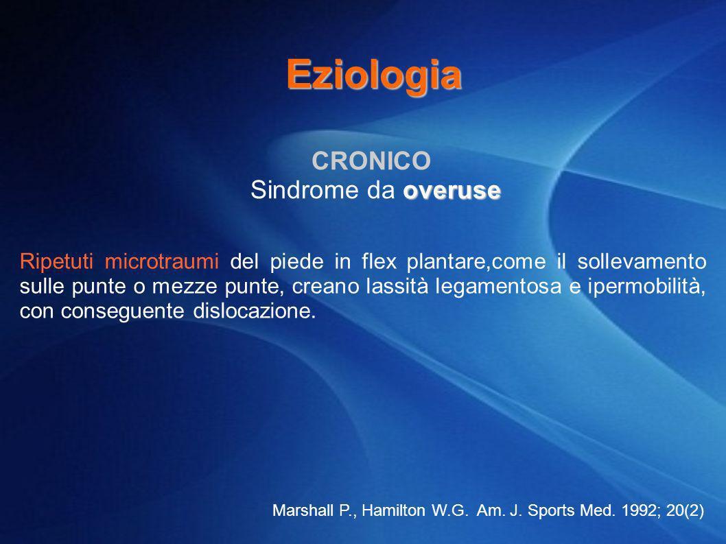 CRONICO overuse Sindrome da overuse Ripetuti microtraumi del piede in flex plantare,come il sollevamento sulle punte o mezze punte, creano lassità leg