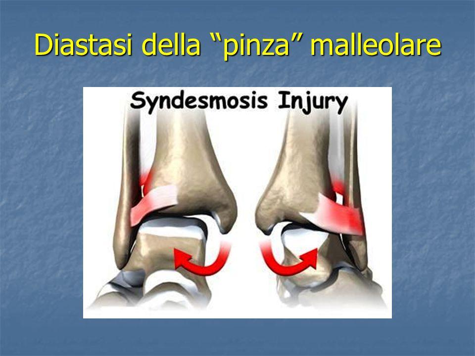 Trauma in inversione O supinazione -lesione del peroneo-astragalico anteriore-