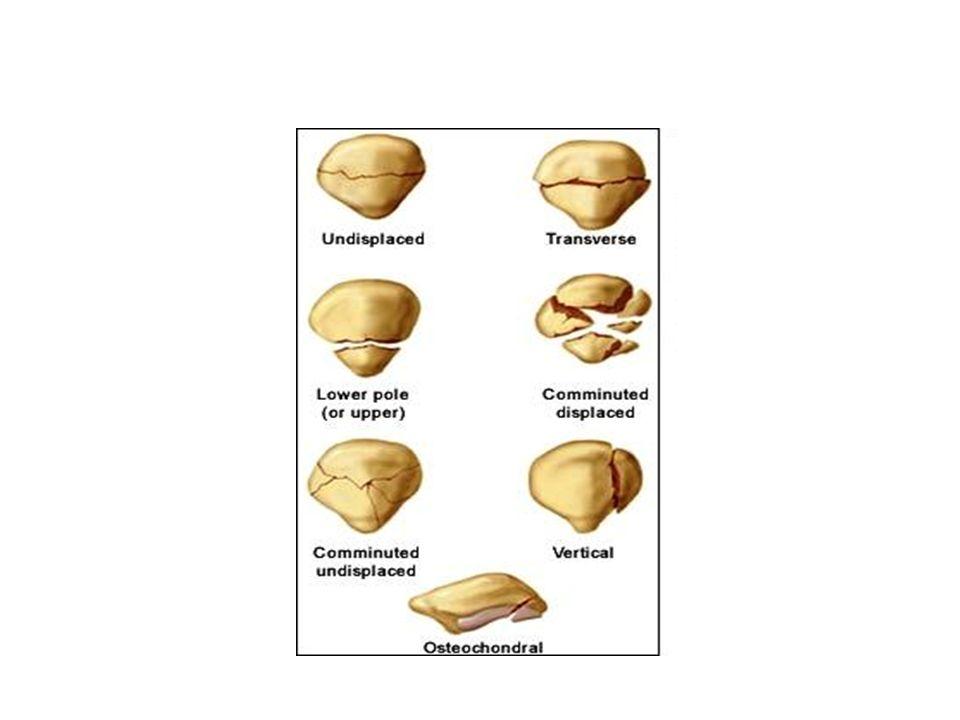 TRAUMI OSTEO-ARTICOLARI Fratture da trauma da stress