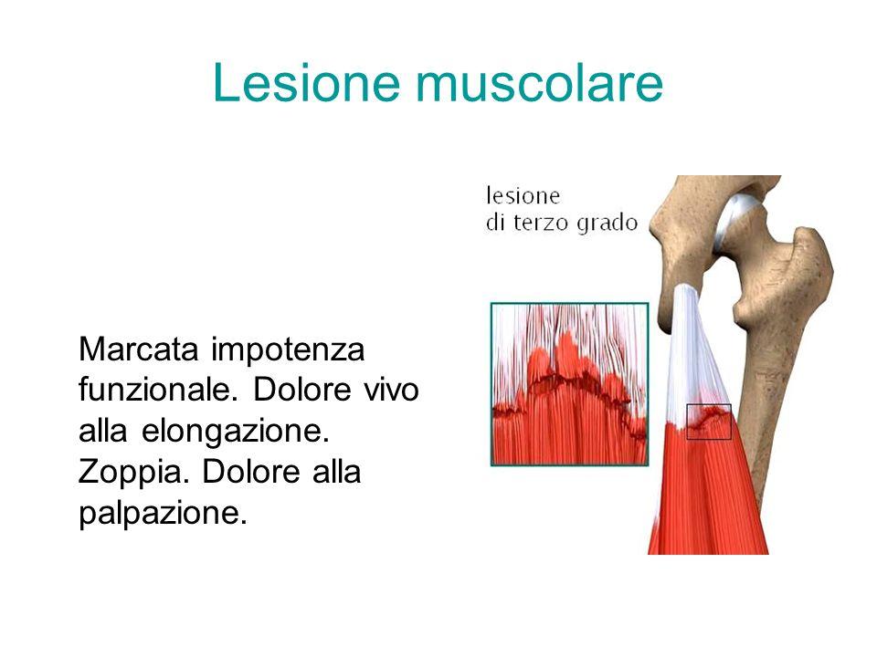 Lesione muscolare Dolore e impotenza funzionale anche alle piccole sollecitazioni. Dolore alla palpazione profonda