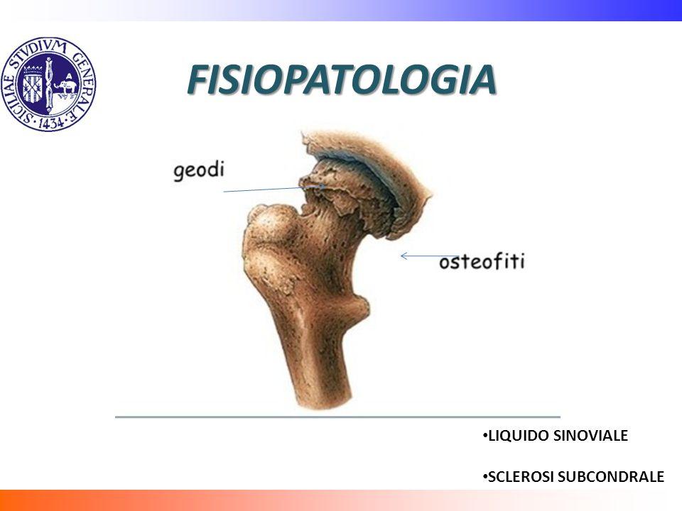 FISIOPATOLOGIA LIQUIDO SINOVIALE SCLEROSI SUBCONDRALE