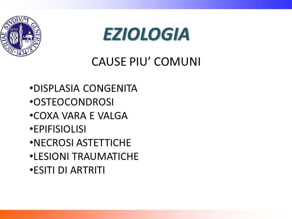 EZIOLOGIA DISPLASIA CONGENITA OSTEOCONDROSI COXA VARA E VALGA EPIFISIOLISI NECROSI ASTETTICHE LESIONI TRAUMATICHE ESITI DI ARTRITI CAUSE PIU COMUNI
