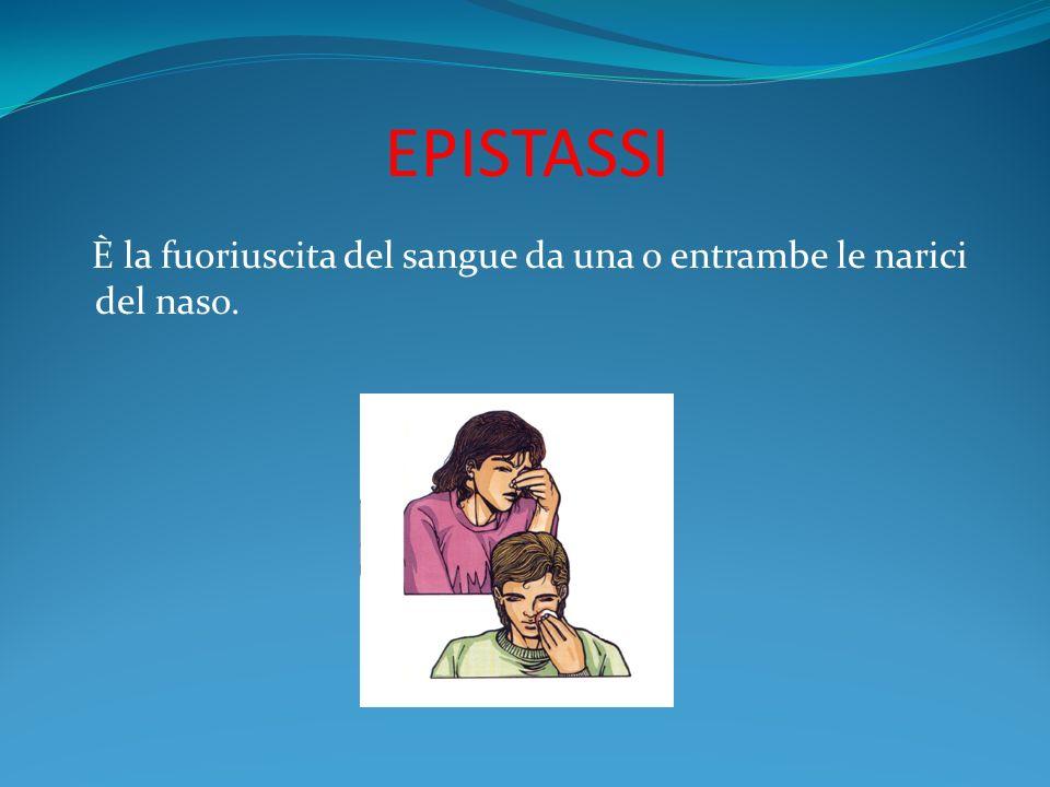 EPISTASSI È la fuoriuscita del sangue da una o entrambe le narici del naso.