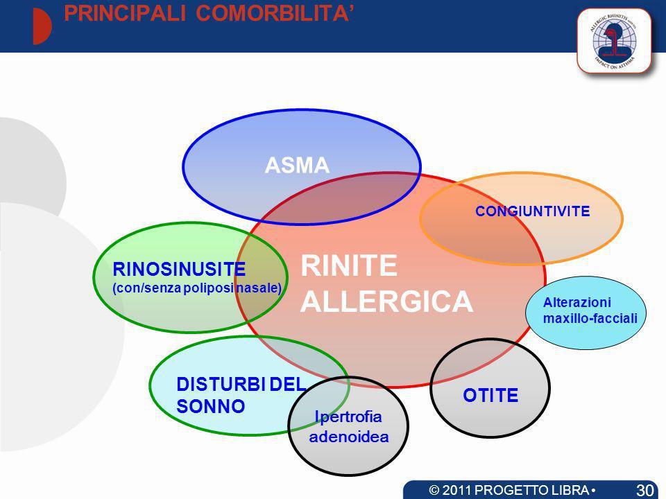 RINITE ALLERGICA ASMA RINOSINUSITE (con/senza poliposi nasale) CONGIUNTIVITE OTITE DISTURBI DEL SONNO Ipertrofia adenoidea Alterazioni maxillo-faccial