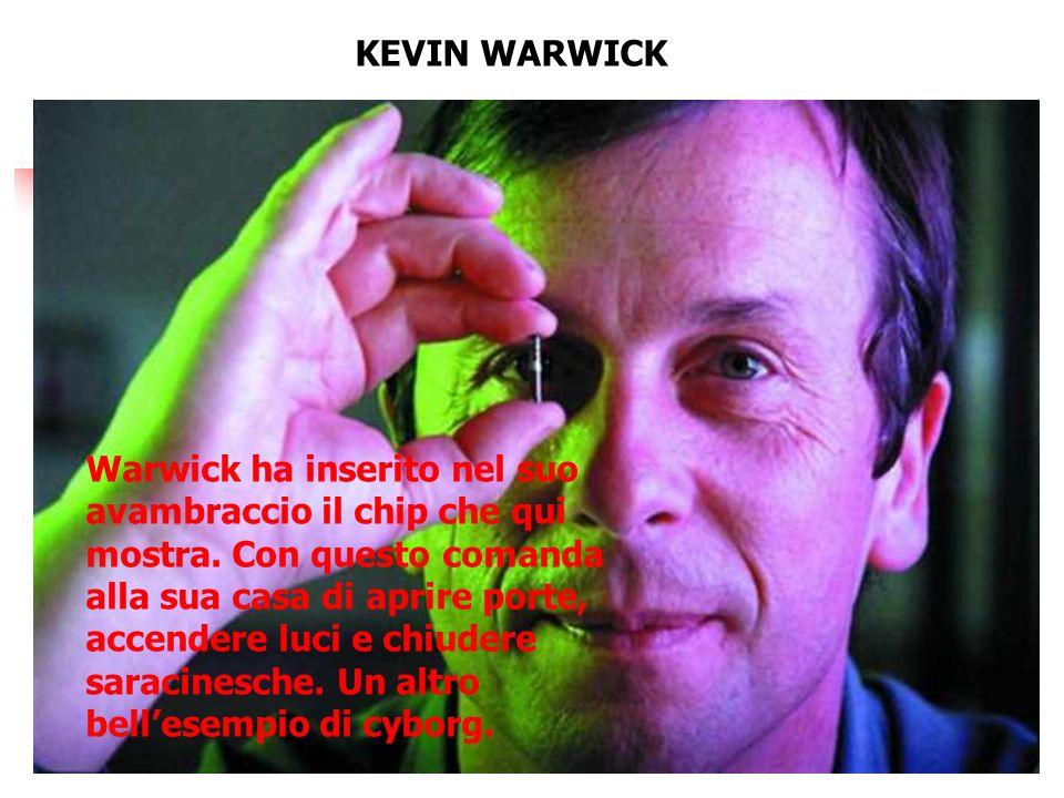 KEVIN WARWICK Warwick ha inserito nel suo avambraccio il chip che qui mostra.