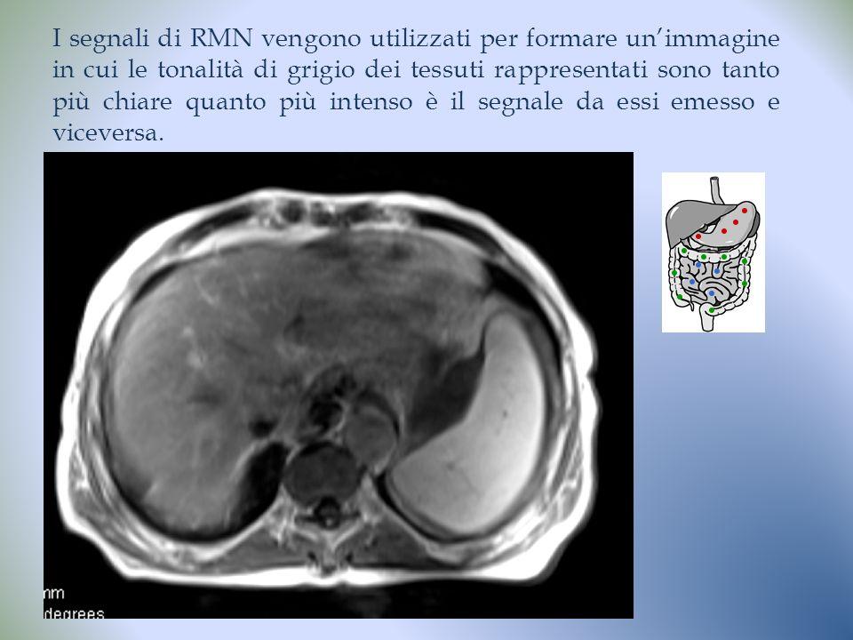 Dr.ssa Veronica Papa I segnali di RMN vengono utilizzati per formare unimmagine in cui le tonalità di grigio dei tessuti rappresentati sono tanto più chiare quanto più intenso è il segnale da essi emesso e viceversa.