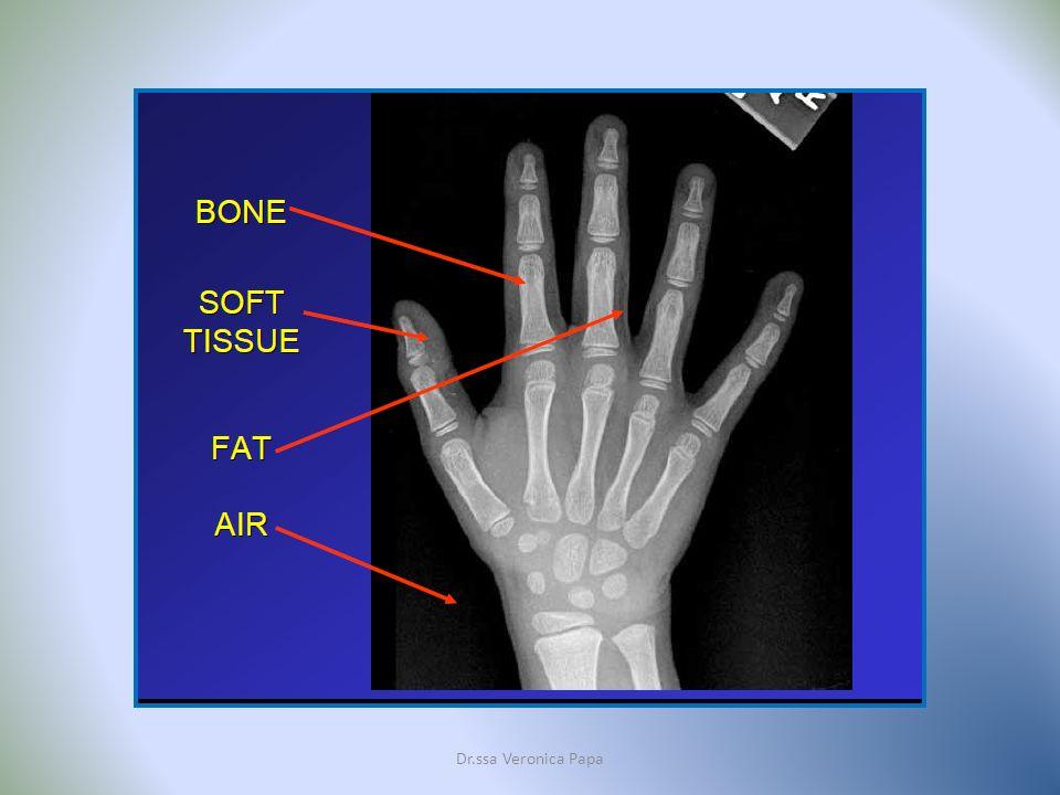 Dr.ssa Veronica Papa Dopo l esame Le immagini del corpo in sezione ottenute durante la permanenza del paziente all interno della macchina RM vengono visualizzate in un schermo televisivo, e quindi in un secondo tempo stampate su di una pellicola simil-radiografica.