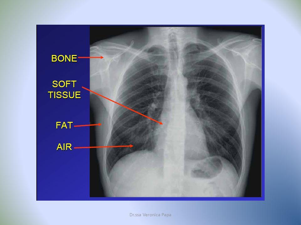 RM vs TC Dr.ssa Veronica Papa Modalità di formazione delle immagini: Radiografia e TAC si basano sulla trasmissione di Raggi X; la RM rileva e analizza lemissione di segnali indotti dallorganismo a seguito dellapplicazione di un campo magnetico e di radiofrequenze.