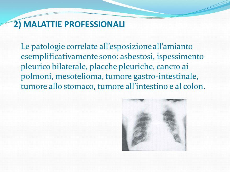 2) MALATTIE PROFESSIONALI Le patologie correlate allesposizione allamianto esemplificativamente sono: asbestosi, ispessimento pleurico bilaterale, pla