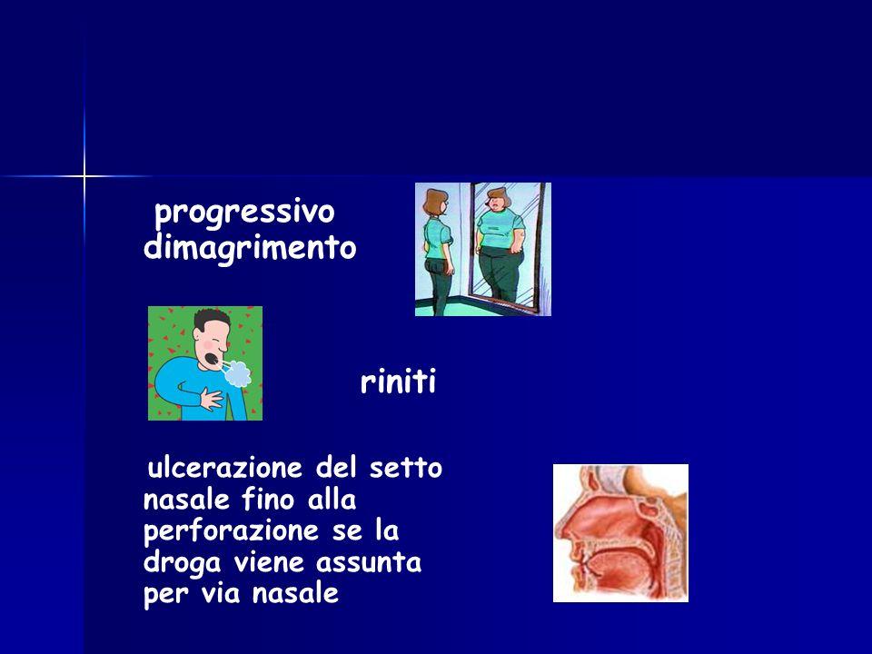 progressivo dimagrimento riniti ulcerazione del setto nasale fino alla perforazione se la droga viene assunta per via nasale