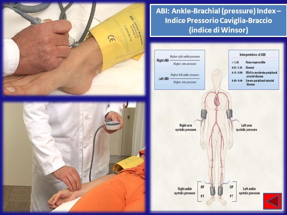 ABI: Ankle-Brachial (pressure) Index – Indice Pressorio Caviglia-Braccio (indice di Winsor) ABI: Ankle-Brachial (pressure) Index – Indice Pressorio Ca