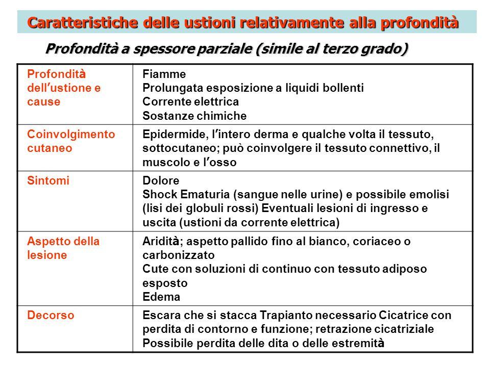 Caratteristiche delle ustioni relativamente alla profondità Profondità a spessore parziale (simile al terzo grado) Profondit à dell ustione e cause Fi