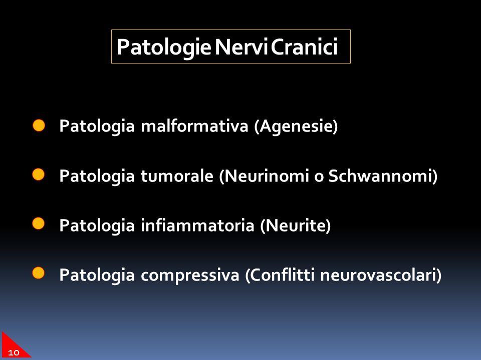 Patologie Nervi Cranici Patologia malformativa (Agenesie) Patologia tumorale (Neurinomi o Schwannomi) Patologia infiammatoria (Neurite) Patologia comp