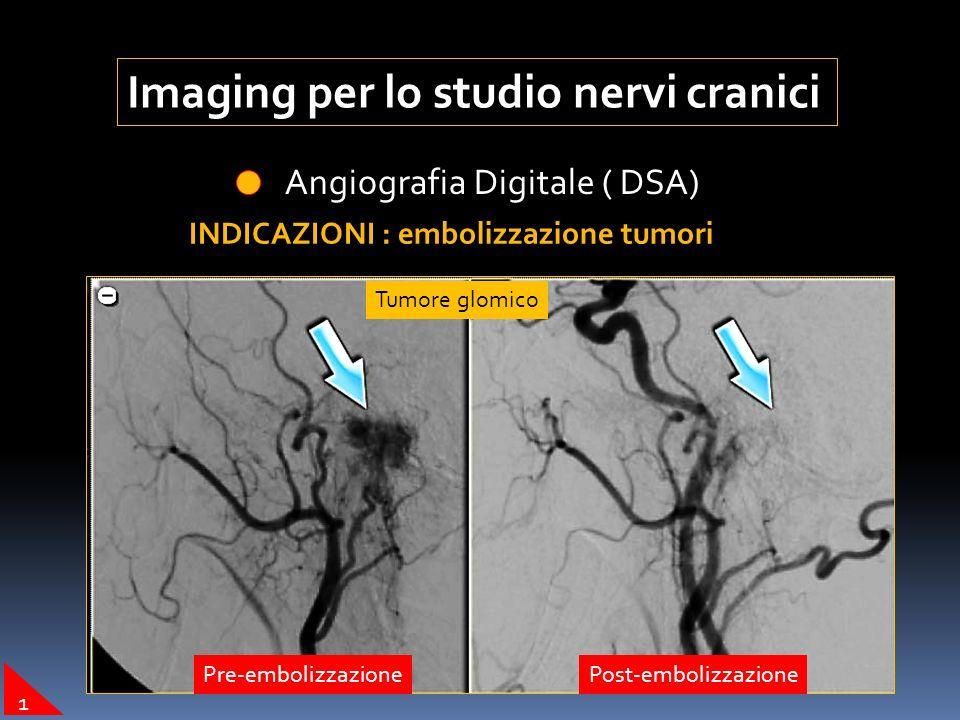 Imaging per lo studio nervi cranici Angiografia Digitale ( DSA) INDICAZIONI : embolizzazione tumori Tumore glomico Pre-embolizzazionePost-embolizzazio