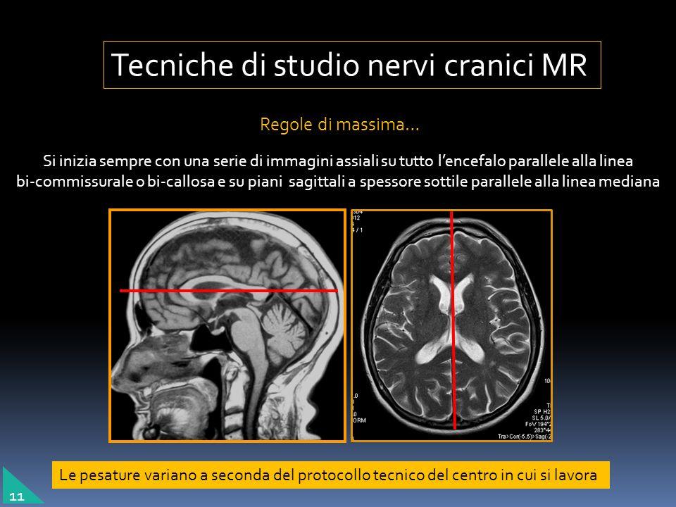 Tecniche di studio nervi cranici MR Regole di massima… Si inizia sempre con una serie di immagini assiali su tutto lencefalo parallele alla linea bi-c