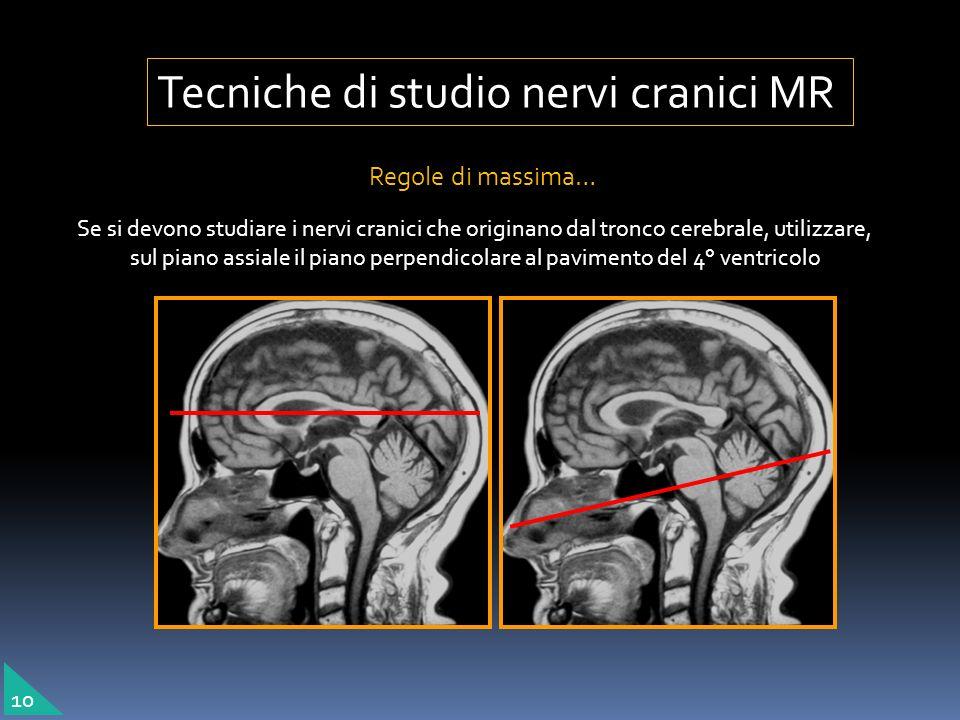 Regole di massima… Se si devono studiare i nervi cranici che originano dal tronco cerebrale, utilizzare, sul piano assiale il piano perpendicolare al