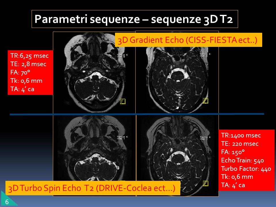 Parametri sequenze – sequenze 3D T2 3D Turbo Spin Echo T2 (DRIVE-Coclea ect…) 3D Gradient Echo (CISS-FIESTA ect..) TR:6,25 msec TE: 2,8 msec FA: 70° T