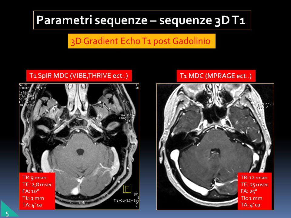 Parametri sequenze – sequenze 3D T1 3D Gradient Echo T1 post Gadolinio T1 SpIR MDC (VIBE,THRIVE ect..) T1 MDC (MPRAGE ect..) TR:9 msec TE: 2,8 msec FA