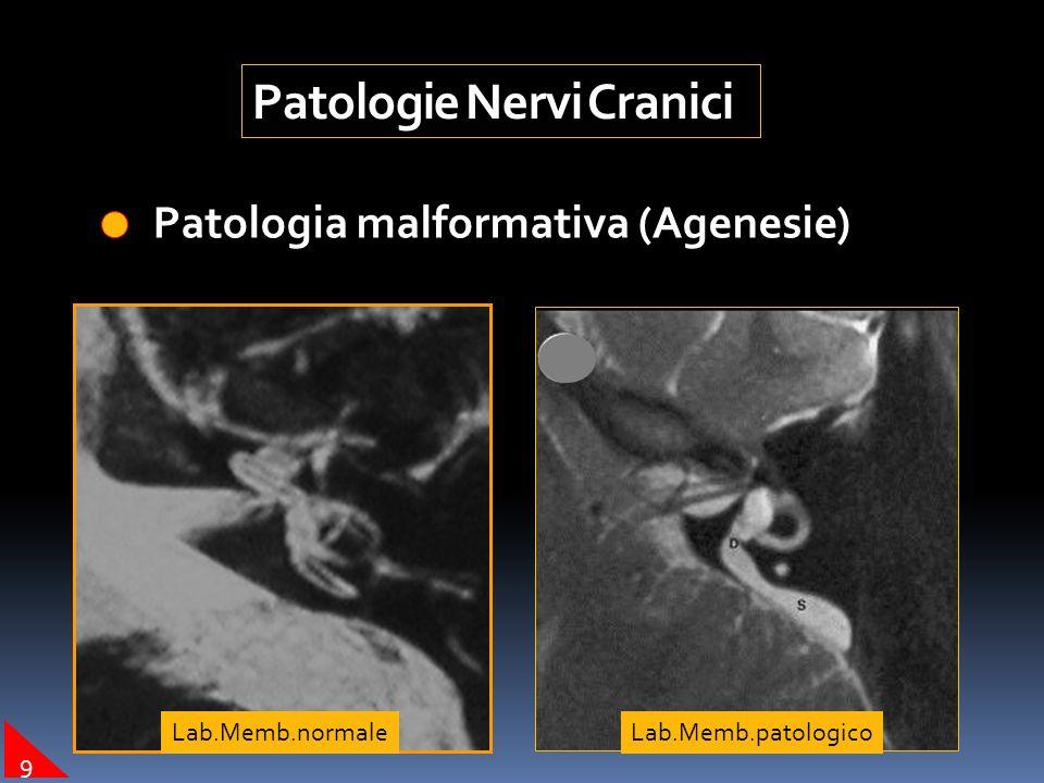 Patologie Nervi Cranici Patologia tumorale (Neurinomi o Schwannomi) Pat.Tum. 7-8 nc Pat.Tum. 12nc 8