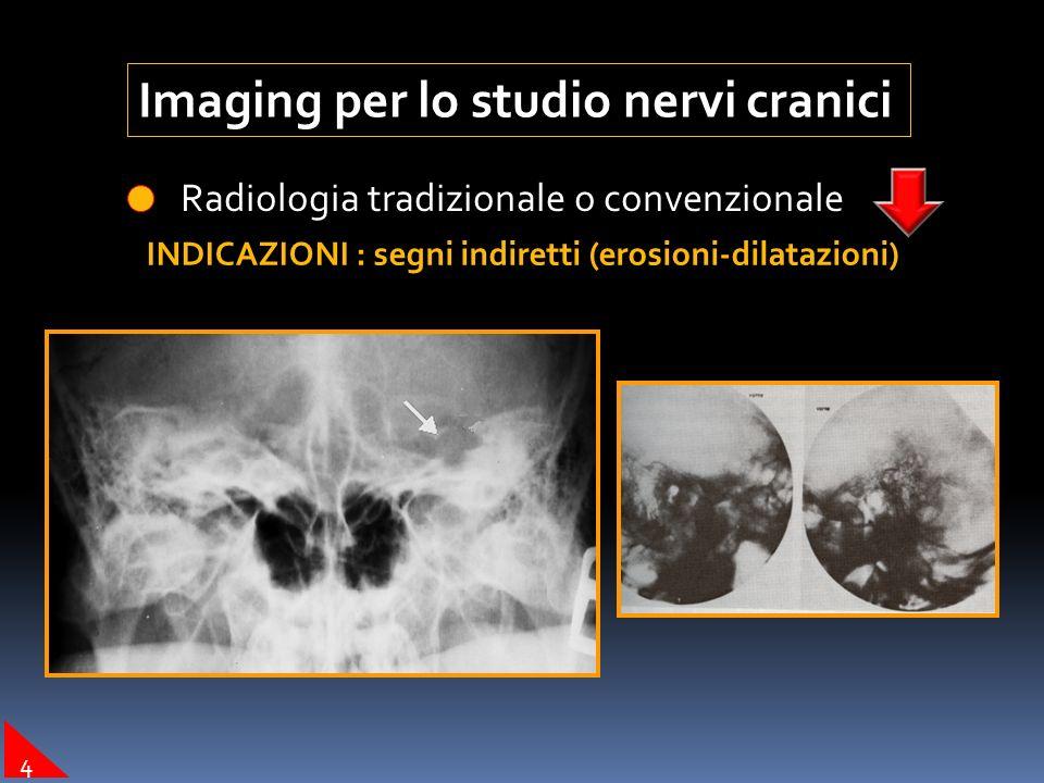 Imaging per lo studio nervi cranici Tomografia Computerizzata (TC –CT-CTMS) INDICAZIONI : dettaglio osseo (fratture-malformazioni ossee OM) FRATTURA OTOSCLEROSI 3